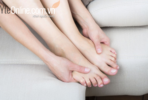 Thông tin về giãn tĩnh mạch chân