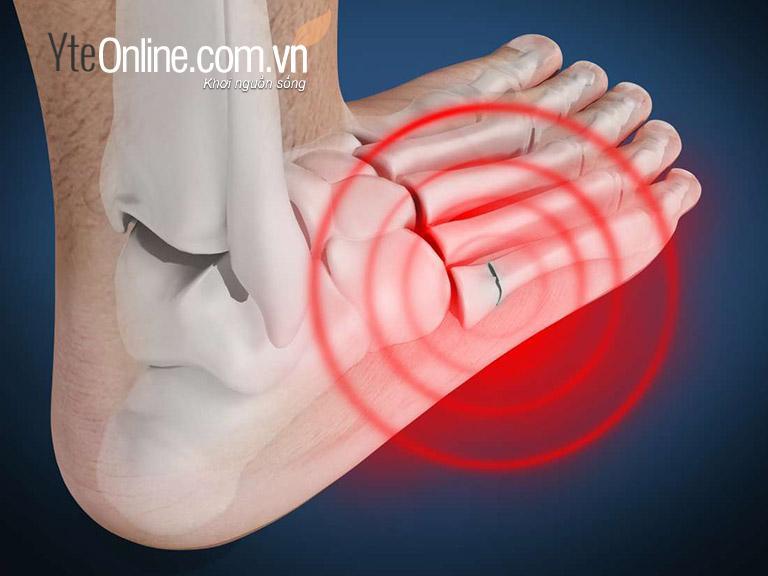 Đau khớp bàn chân ngâm chân với gì để cải thiện