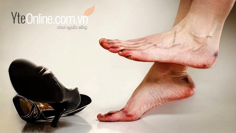 Tuyệt chiêu giảm đau chân do đi giày cao gót bằng bồn ngâm chân