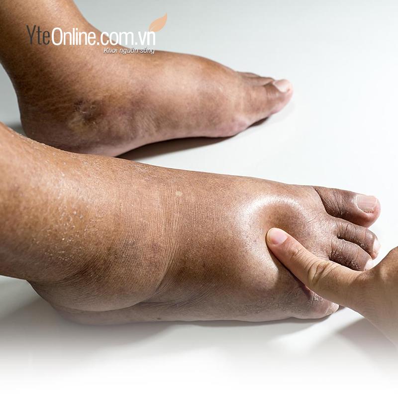 Bệnh phù chân ở người cao tuổi cảnh báo bệnh gì và cách phòng tránh