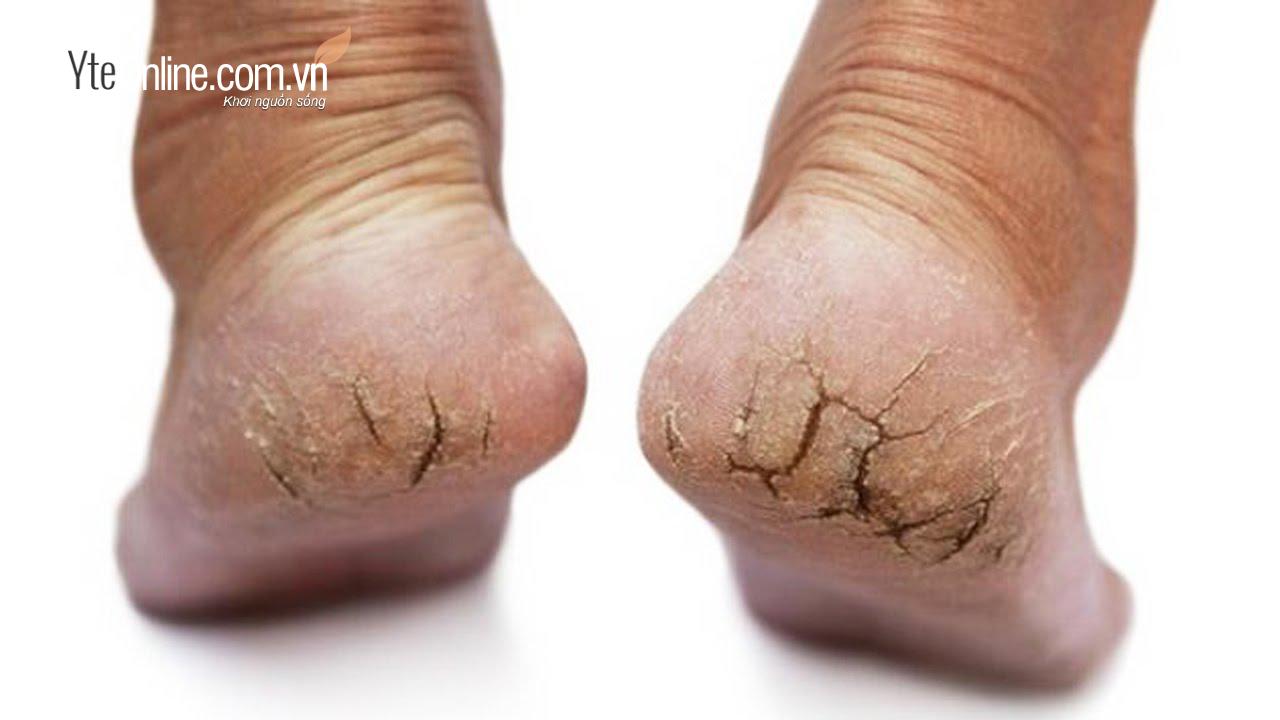 Tổng hợp cách ngăn ngừa nứt gót chân vào mùa đông hiệu quả