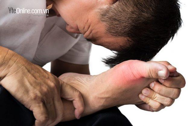 Nên làm gì nếu bị đau bàn chân